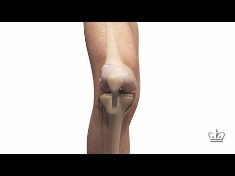 Knee Meniscus Regenerated with 3D-Printed Implant