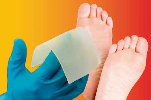 Desarrollan un sustituto de piel de origen polimérico para curar el pie diabético.