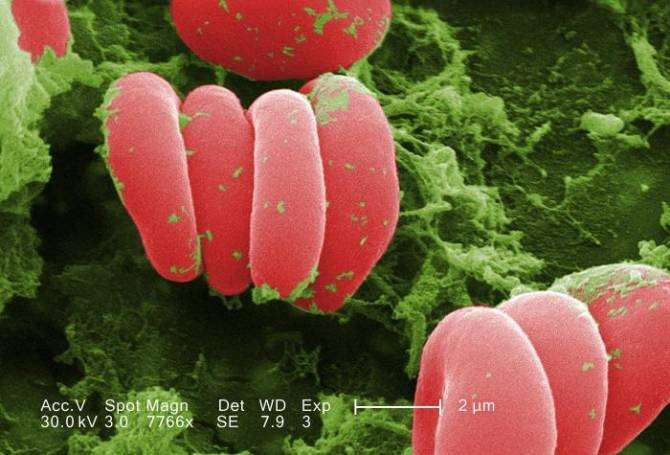 Glóbulos rojos. (Foto: Janice Haney Carr / CDC)