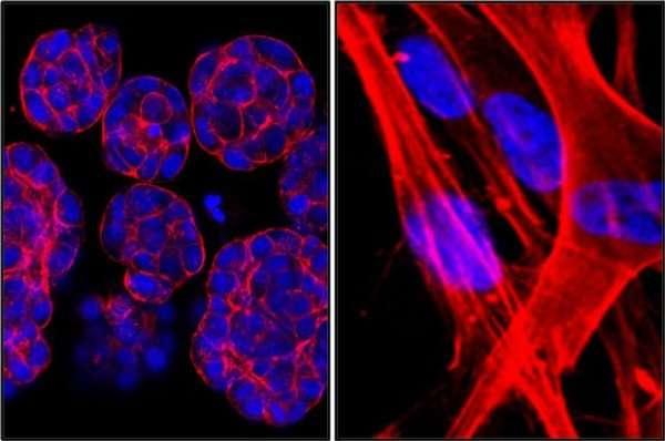 Células cancerígenas. EFE/Rebeca Córcoles