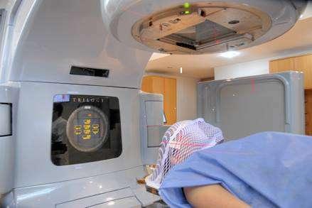 La Radiocirugía Estereotáxica cura lesiones donde otras técnicas no llegan