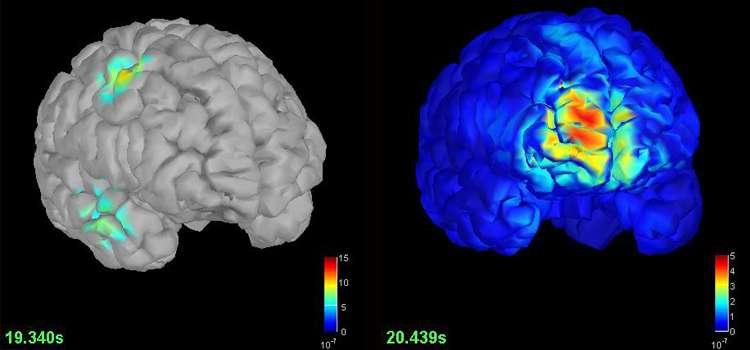 El software Brainstorm fue creado para perfeccionar la precisión de los diagnósticos en patologías neurológicas