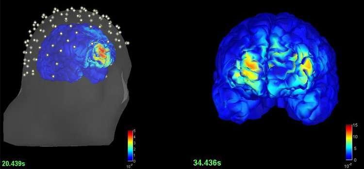 El treinta por ciento de quienes padecen epilepsia deben someterse a estudios invasivos para erradicar el foco de la enfermedad