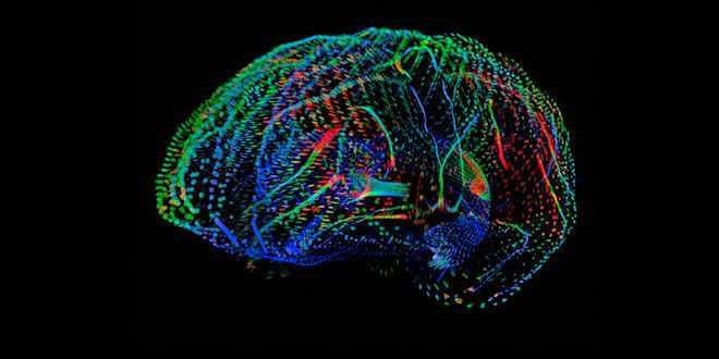 Detectan epilepsia sin intervención quirúrgica