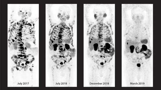 Evolución mediante la teranóstica de un paciente de 82 años con cáncer de próstata diseminado a los ganglios linfáticos y los huesos. Estado al principio de aplicar la teranóstica (extremo izquierdo) y práctica remisión total de la enfermedad (extremo derecho).